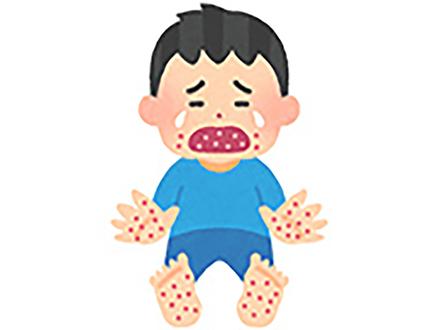この夏、手足口病と風疹が猛威を振るっている 国立感染症研究所統計