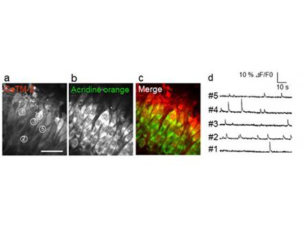 赤い蛍光試薬で細胞内カルシウムイオンを可視化