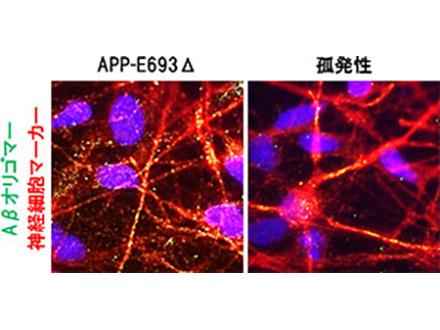iPS細胞で赤血球量産の技術開発