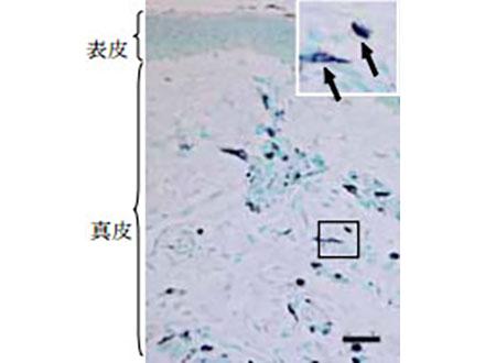 長期埋め込み可能な人工硝子体を開発 東大、筑波大