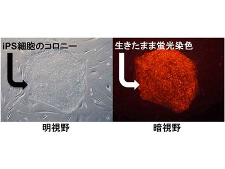 iPS細胞、実用化研究の拠点・課題出そろう