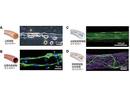 膵島移植に有用な酵素カクテルを開発
