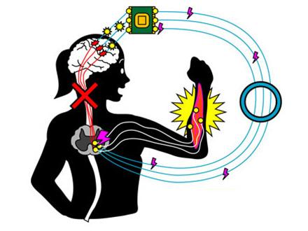脊髄損傷も神経バイパス技術で機能回復