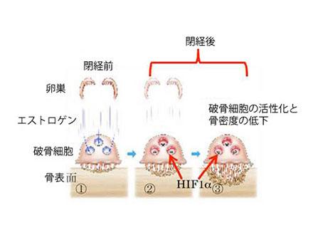 閉経後骨粗鬆症の原因タンパク質を特定