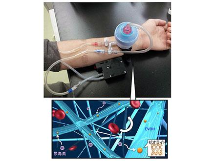 災害時の血液透析メッシュ開発