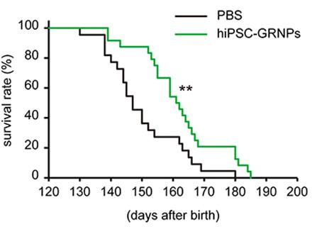 ヒトiPS 移植でALSマウス寿命延長