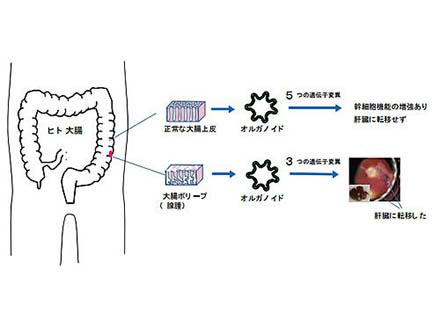 AI活用で大腸がんを徹底チェック 国立がん研究センターとNEC