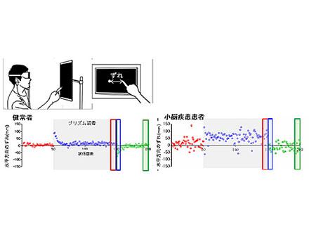 統合失調症の認知機能を回復 理研がモデルマウスで成功
