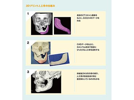 3Dプリンター製造の人工骨EUで製造・販売へ