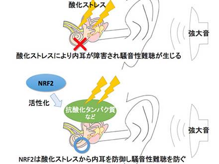 尿酸値は小腸障害のマーカーになる 防衛医大などが発見