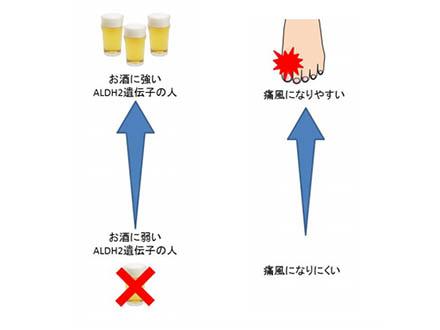 お酒に強い遺伝子持つ人は痛風リスク2倍以上