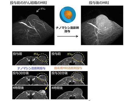 アルファ線でがん細胞を狙い撃ち 量研機構が新薬剤開発