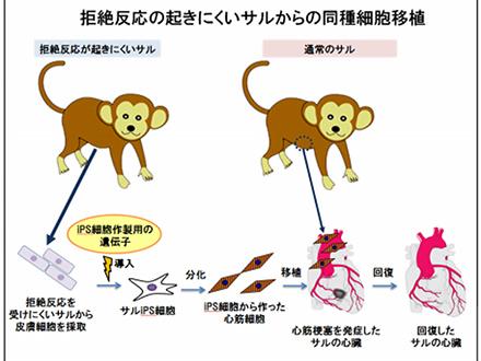 大阪大が世界で初めてiPS角膜移植を実施 ドナー不足克服に貢献期待