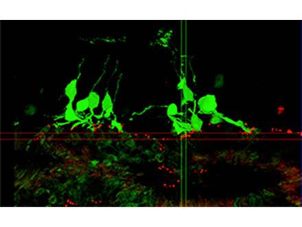 他人のiPS使い世界初の臨床研究開始 理研などが網膜細胞で
