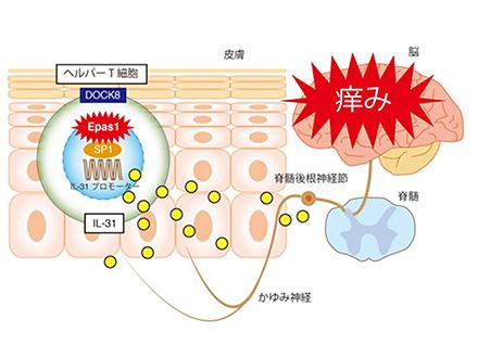 アトピー性皮膚炎、樹状細胞が悪化を抑える役割 宮崎大など従来の見方覆す