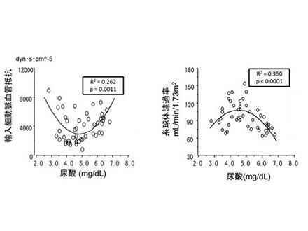 尿酸値、高め、低めも要注意 腎臓に悪影響か 大阪市立大グループ