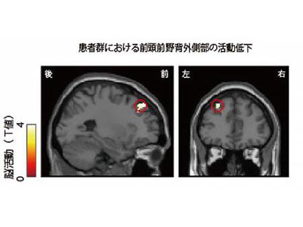 ギャンブル依存症患者は脳一部の活動低下 京大グループ