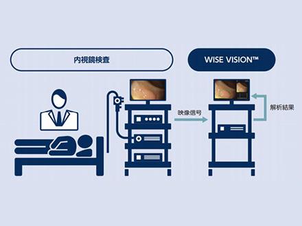 AI活用し大腸がんの見逃しを防止 診断システムが医療機器承認、がんセンターとNECが開発
