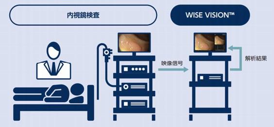 診断システム「WISE VISION 内視鏡画像解析AI」の概略図((国立がん研究センター提供)