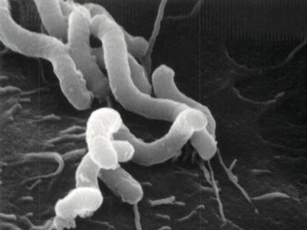 ピロリ菌が胃に感染し続ける仕組みを解明 大阪大など