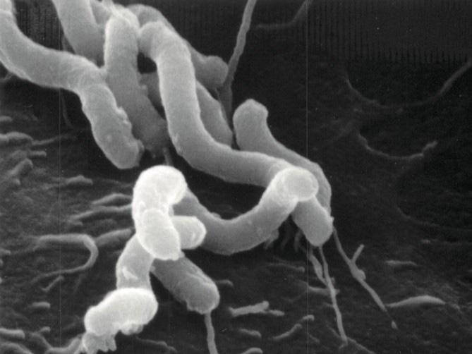 ピロリ菌の顕微鏡写真(大阪大学微生物病研究所提供)