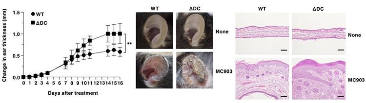 マウスの耳にアトピー性皮膚炎を起こす薬(MC903)を塗った実験。WTは健康な、ΔDCは樹状細胞を欠いたマウス。左のグラフは皮膚の腫れ具合を示す。中央の耳の写真や、右の皮膚組織の写真から、樹状細胞のない方が症状が悪化したことが分かる(宮崎大学提供)