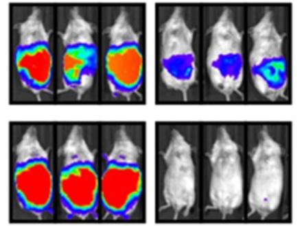 スキルス胃がんの遺伝子異常を特定し新治療に光明 国立がん研究センターと慶大