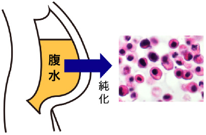 研究グループはスキルス胃がんで腹水がたまった患者98人の腹水から純化したがん細胞などを採取して遺伝情報を網羅的に調べる「全ゲノム解析」を行った(国立がん研究センター・慶應大学提供)