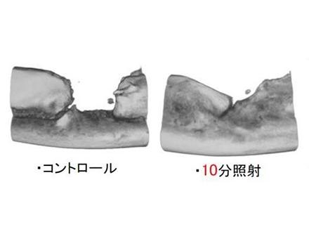 プラズマ照射、骨の再生を促進 効率的治療に期待 大阪市立大