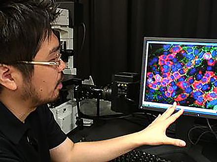 サイエンスニュース2011(新着情報) (20)マウスの皮膚細胞から直接肝臓の細胞を作製
