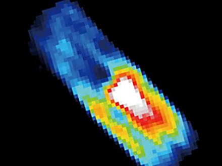 サイエンスニュース2014 生きた細胞を見る SACLAの挑戦(2014年7月17日配信)