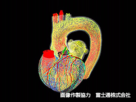 サイエンスニュース2016 スパコンの中に生きた心臓を再現 心臓シミュレータ UT-Heart(2016年2月3日配信)