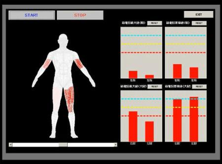 筋電計で筋肉の電気活動を計測し、体の動きと筋活動を照らし合わせて動きの仕組みを探る画像提供:東京大学スポーツバイオメカニクス研究室